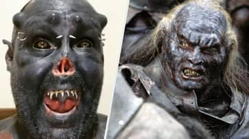 Man Cuts Off Nose In Order To Look Like Lord Of The Rings Orc